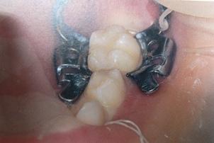 乳臼歯へのラバーダム装着